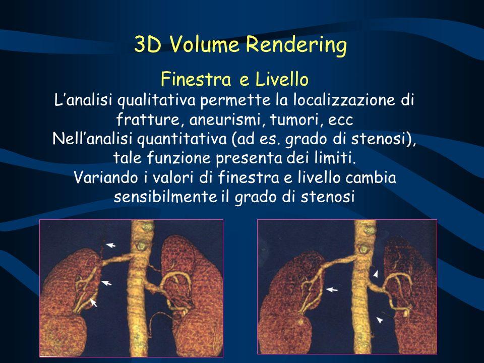 Finestra e Livello Lanalisi qualitativa permette la localizzazione di fratture, aneurismi, tumori, ecc Nellanalisi quantitativa (ad es. grado di steno