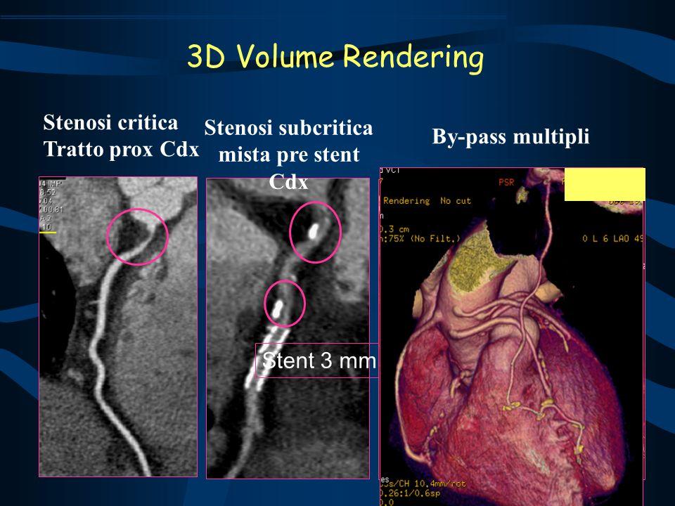 Stent 3 mm Stenosi critica Tratto prox Cdx Stenosi subcritica mista pre stent Cdx By-pass multipli 3D Volume Rendering