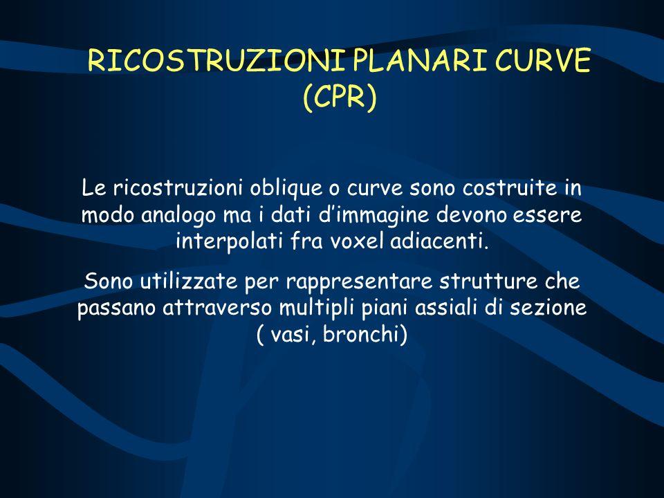 RICOSTRUZIONI PLANARI CURVE (CPR) Le ricostruzioni oblique o curve sono costruite in modo analogo ma i dati dimmagine devono essere interpolati fra vo