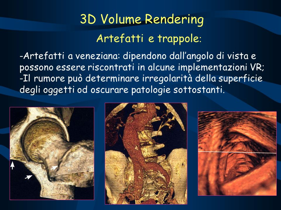Artefatti e trappole : -Artefatti a veneziana: dipendono dallangolo di vista e possono essere riscontrati in alcune implementazioni VR; -Il rumore può determinare irregolarità della superficie degli oggetti od oscurare patologie sottostanti.