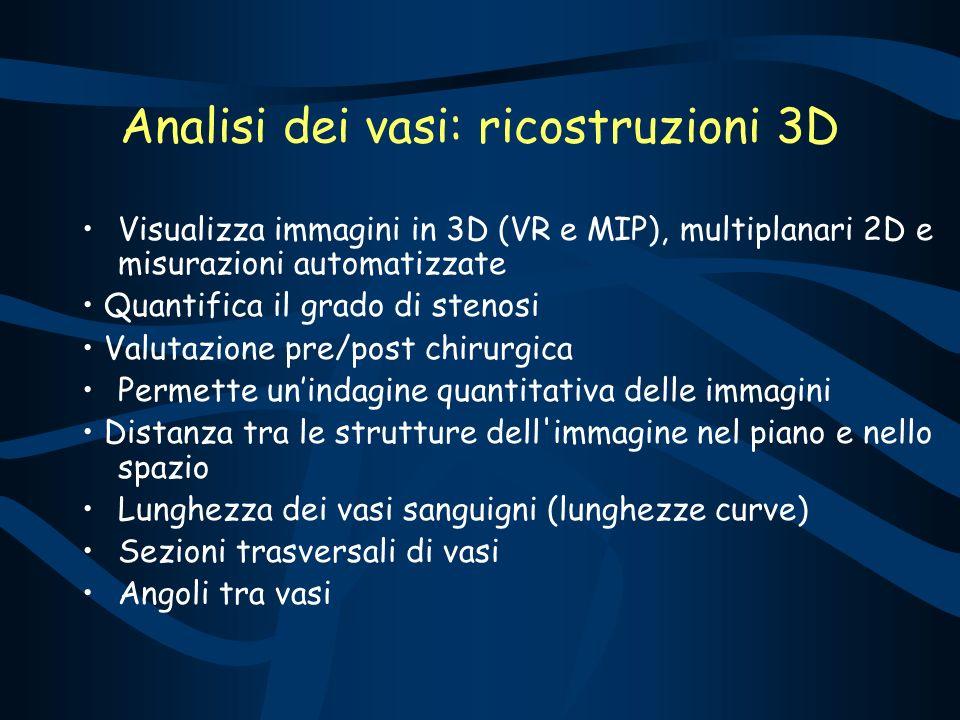 Analisi dei vasi: ricostruzioni 3D Visualizza immagini in 3D (VR e MIP), multiplanari 2D e misurazioni automatizzate Quantifica il grado di stenosi Va
