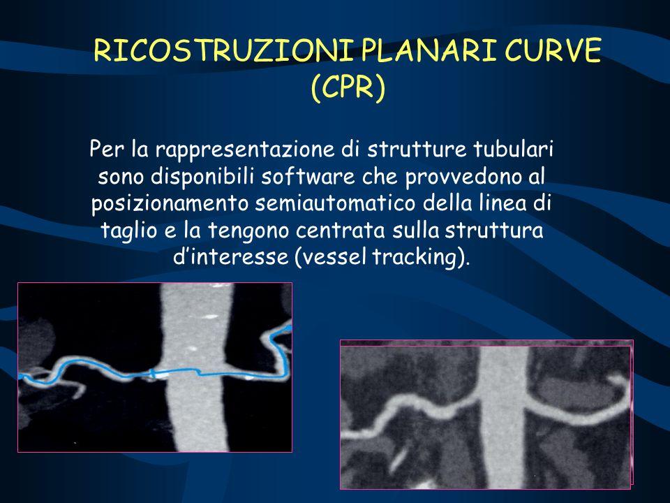 RICOSTRUZIONI PLANARI CURVE (CPR) Per la rappresentazione di strutture tubulari sono disponibili software che provvedono al posizionamento semiautomatico della linea di taglio e la tengono centrata sulla struttura dinteresse (vessel tracking).