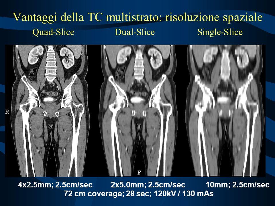 Vantaggi della TC multistrato: risoluzione spaziale Quad-Slice Dual-Slice Single-Slice 4x2.5mm; 2.5cm/sec 2x5.0mm; 2.5cm/sec 10mm; 2.5cm/sec 72 cm coverage; 28 sec; 120kV / 130 mAs