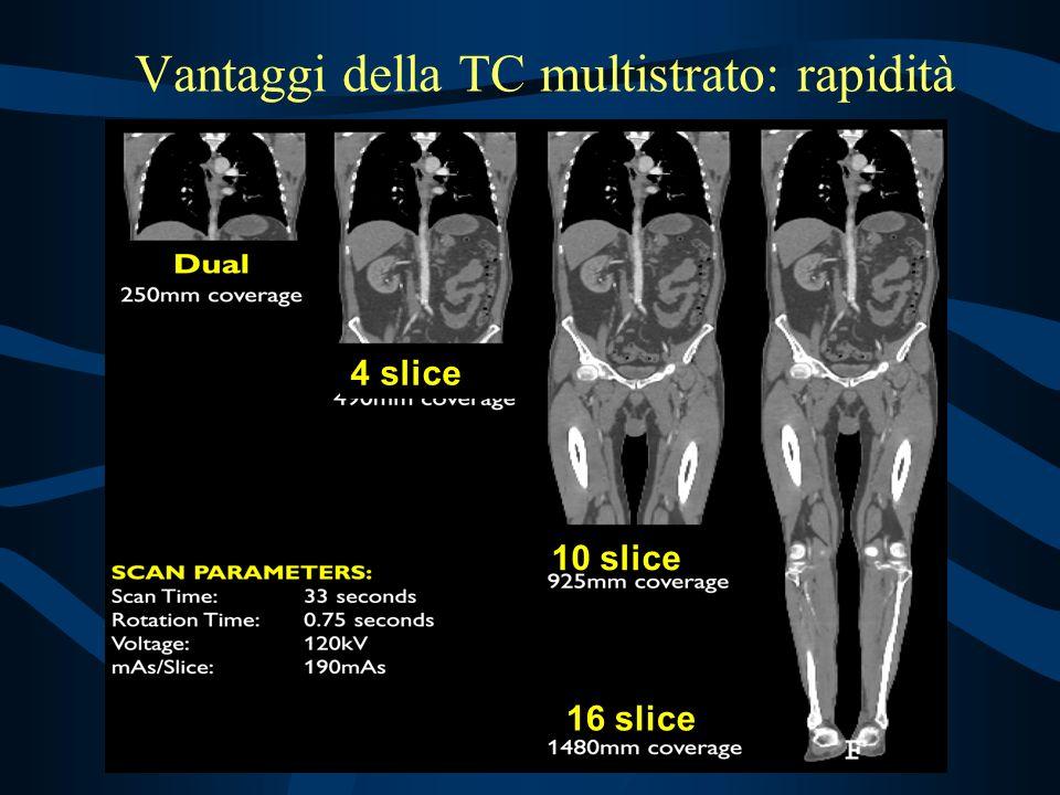 10 slice 16 slice 4 slice Vantaggi della TC multistrato: rapidità