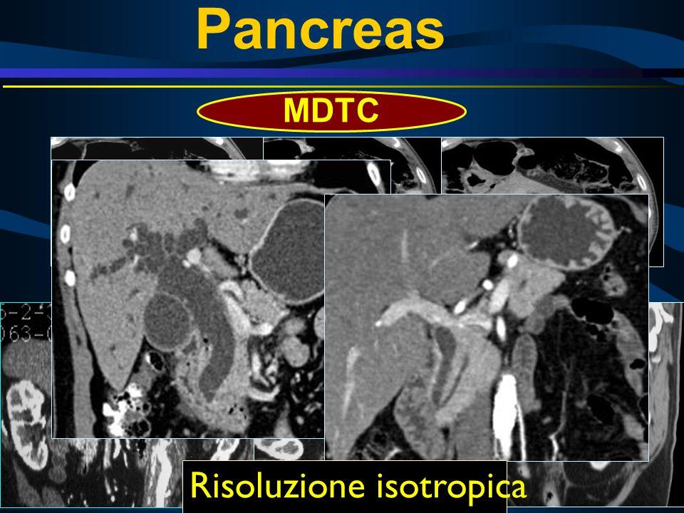 45 sec75 sec5 min Risoluzione isotropica MDTC Pancreas