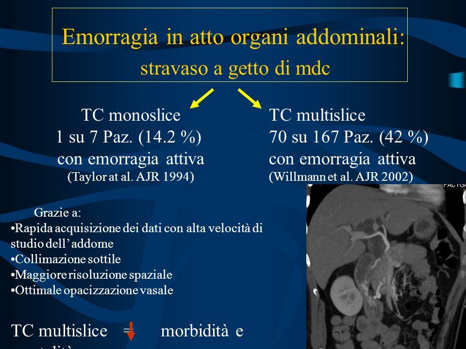 Emorragia in atto organi addominali: stravaso a getto di mdc TC monoslice 1 su 7 Paz. (14.2 %) con emorragia attiva (Taylor at al. AJR 1994) TC multis