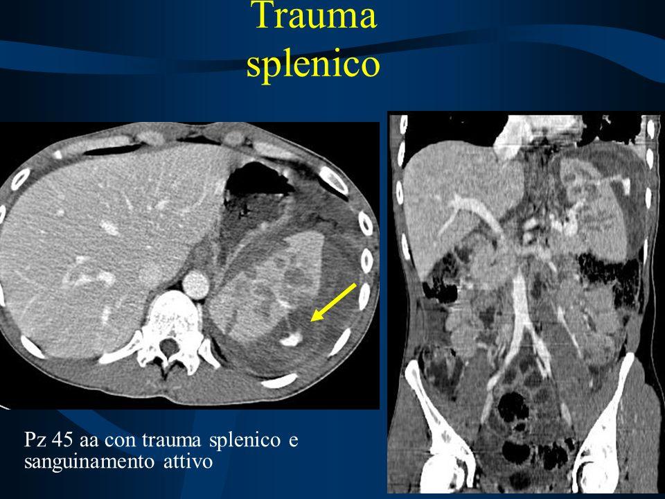 Trauma splenico Pz 45 aa con trauma splenico e sanguinamento attivo