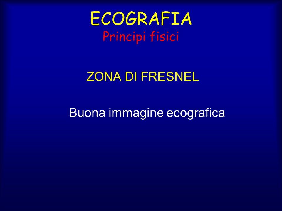 ECOGRAFIA Principi fisici ZONA DI FRESNEL Buona immagine ecografica