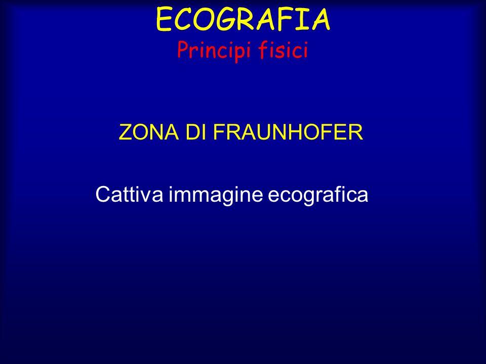 ECOGRAFIA Principi fisici ZONA DI FRAUNHOFER Cattiva immagine ecografica