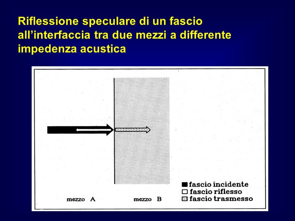Riflessione speculare di un fascio allinterfaccia tra due mezzi a differente impedenza acustica