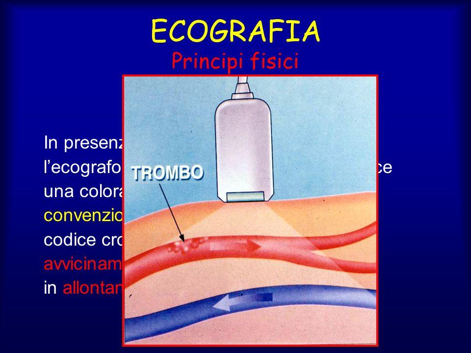 ECOGRAFIA Principi fisici Color-Doppler In presenza di particelle in movimento lecografo rileva leffetto Doppler e produce una colorazione sullo schermo che convenzionalmente viene tarata con un codice cromatico rosso per i flussi in avvicinamento alla sonda e blu per quelli in allontanamento