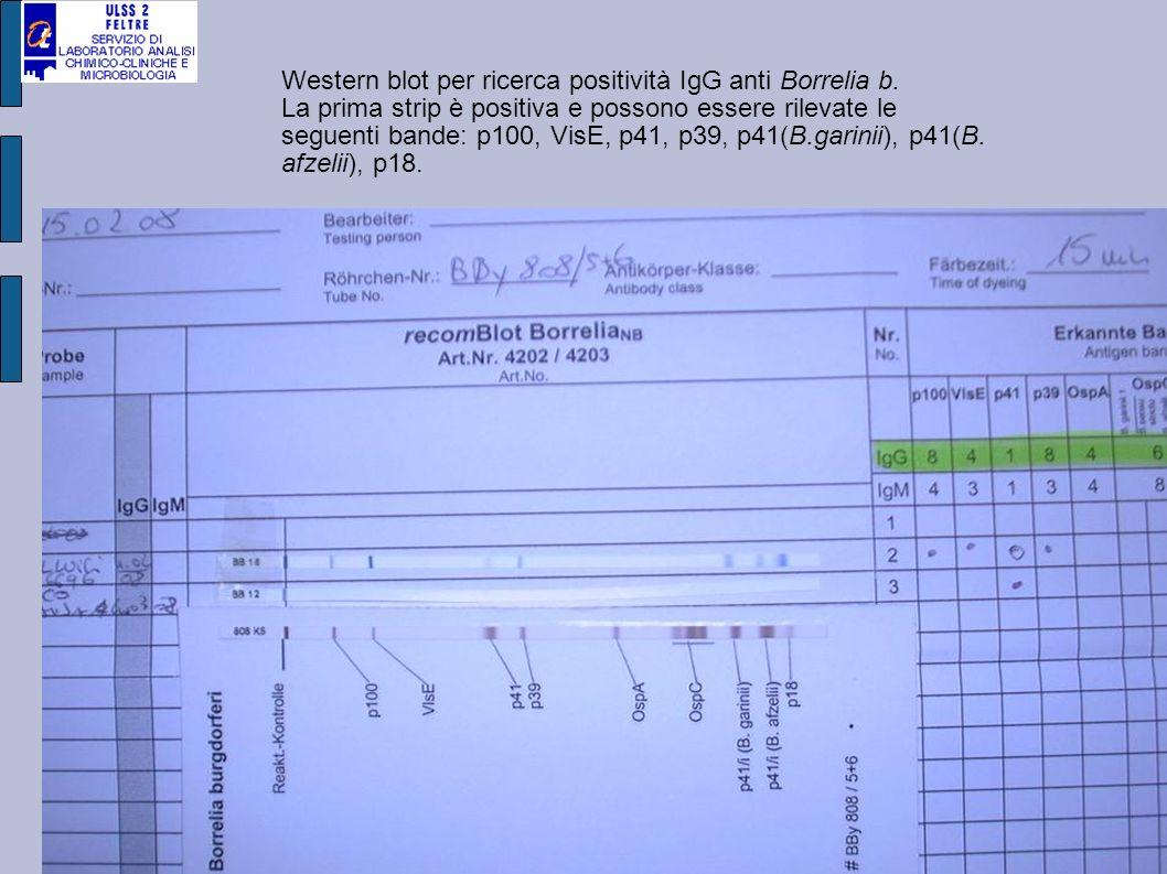 Western blot per ricerca positività IgG anti Borrelia b. La prima strip è positiva e possono essere rilevate le seguenti bande: p100, VisE, p41, p39,