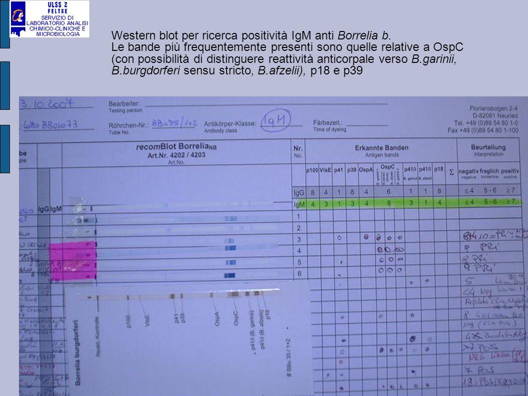 Western blot per ricerca positività IgM anti Borrelia b. Le bande più frequentemente presenti sono quelle relative a OspC (con possibilità di distingu