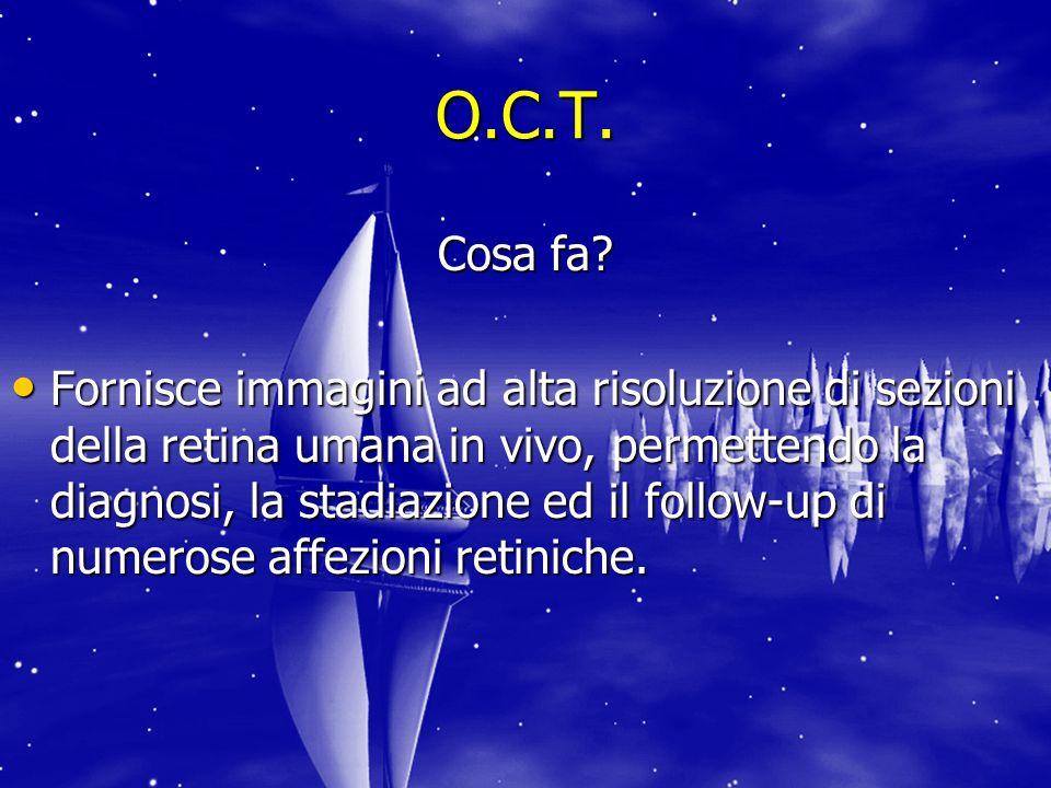 O.C.T.Cosa fa.