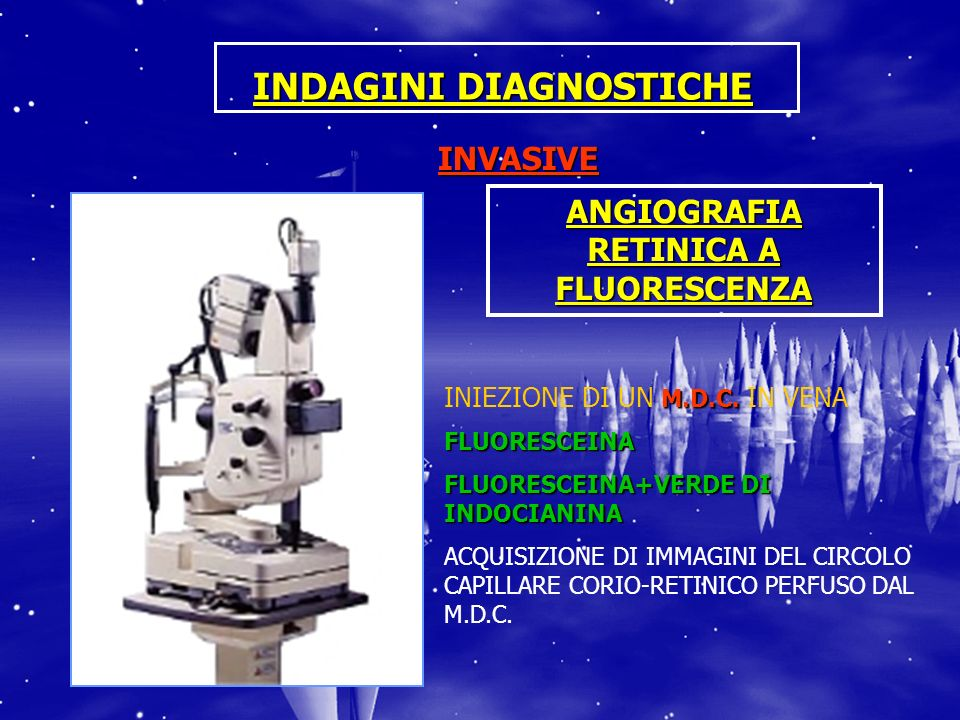 INDAGINI DIAGNOSTICHE INVASIVE M.D.C. INIEZIONE DI UN M.D.C. IN VENAFLUORESCEINA FLUORESCEINA+VERDE DI INDOCIANINA ACQUISIZIONE DI IMMAGINI DEL CIRCOL