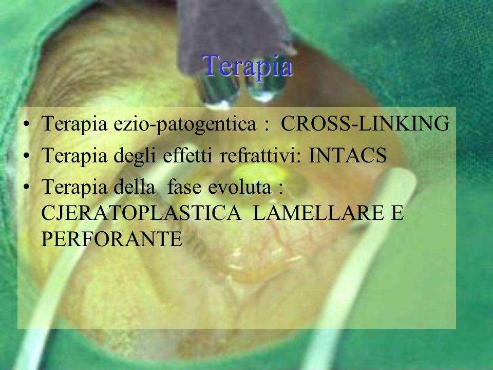 Terapia Terapia ezio-patogentica : CROSS-LINKING Terapia degli effetti refrattivi: INTACS Terapia della fase evoluta : CJERATOPLASTICA LAMELLARE E PER
