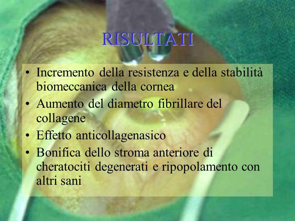 RISULTATI Incremento della resistenza e della stabilità biomeccanica della cornea Aumento del diametro fibrillare del collagene Effetto anticollagenas