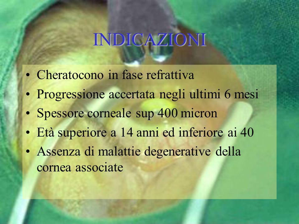 INDICAZIONI Cheratocono in fase refrattiva Progressione accertata negli ultimi 6 mesi Spessore corneale sup 400 micron Età superiore a 14 anni ed infe