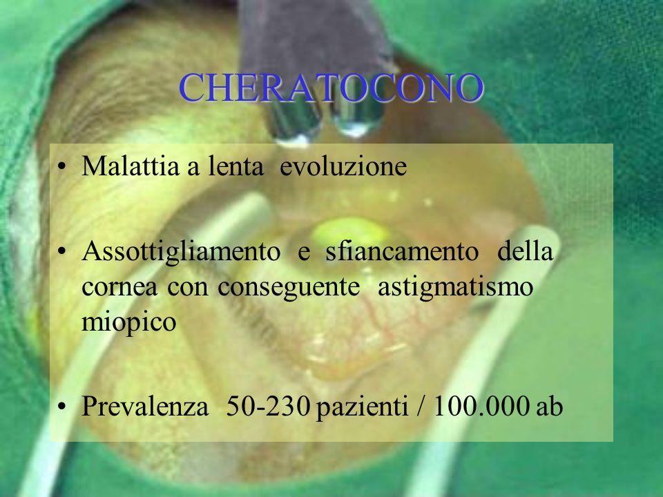 CHERATOCONO Malattia a lenta evoluzione Assottigliamento e sfiancamento della cornea con conseguente astigmatismo miopico Prevalenza 50-230 pazienti /
