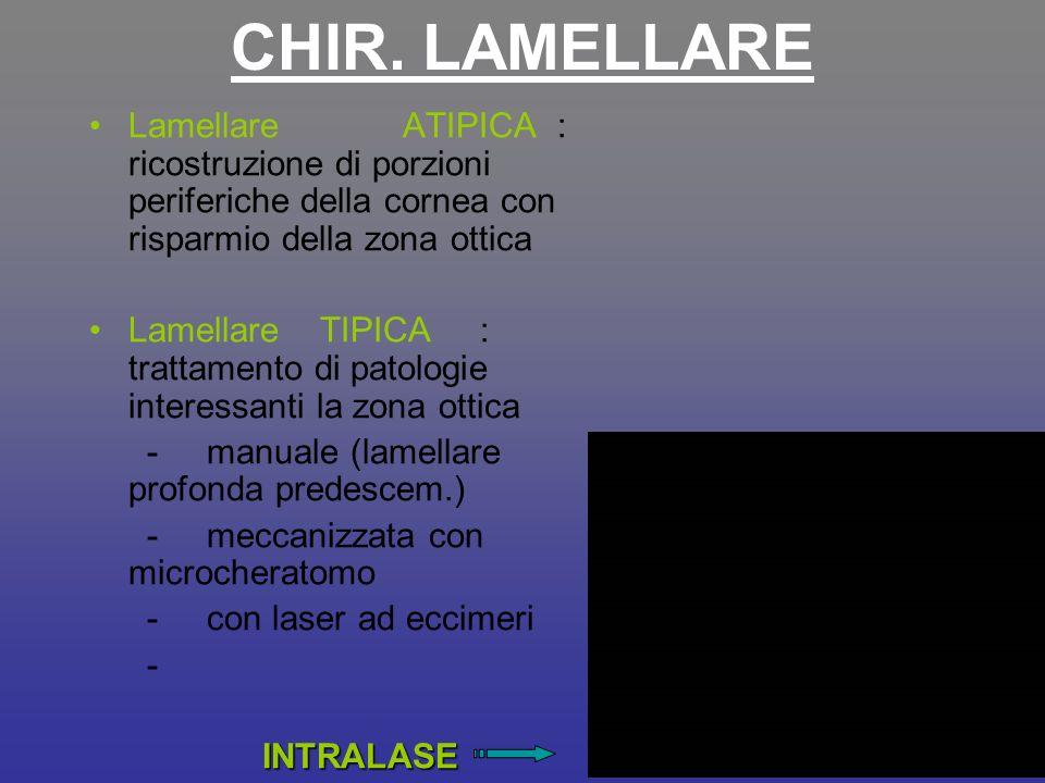 CHIR. LAMELLARE Lamellare ATIPICA : ricostruzione di porzioni periferiche della cornea con risparmio della zona ottica Lamellare TIPICA : trattamento