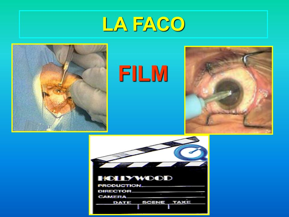 LA FACO FILM