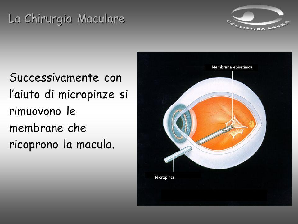 Successivamente con laiuto di micropinze si rimuovono le membrane che ricoprono la macula. La Chirurgia Maculare