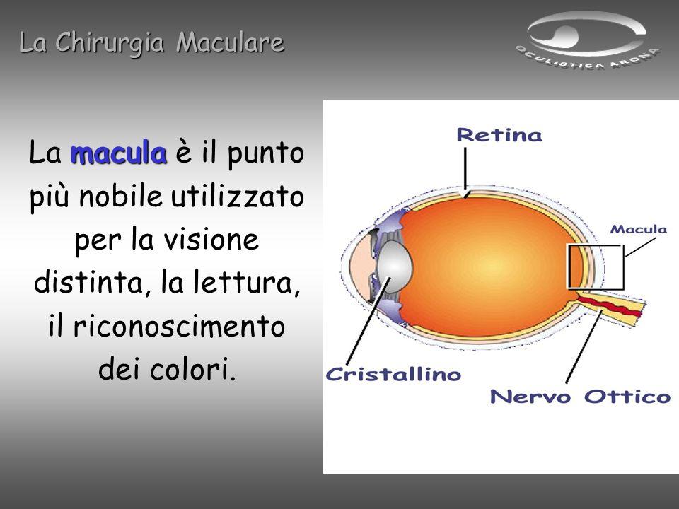 macula La macula è il punto più nobile utilizzato per la visione distinta, la lettura, il riconoscimento dei colori. La Chirurgia Maculare