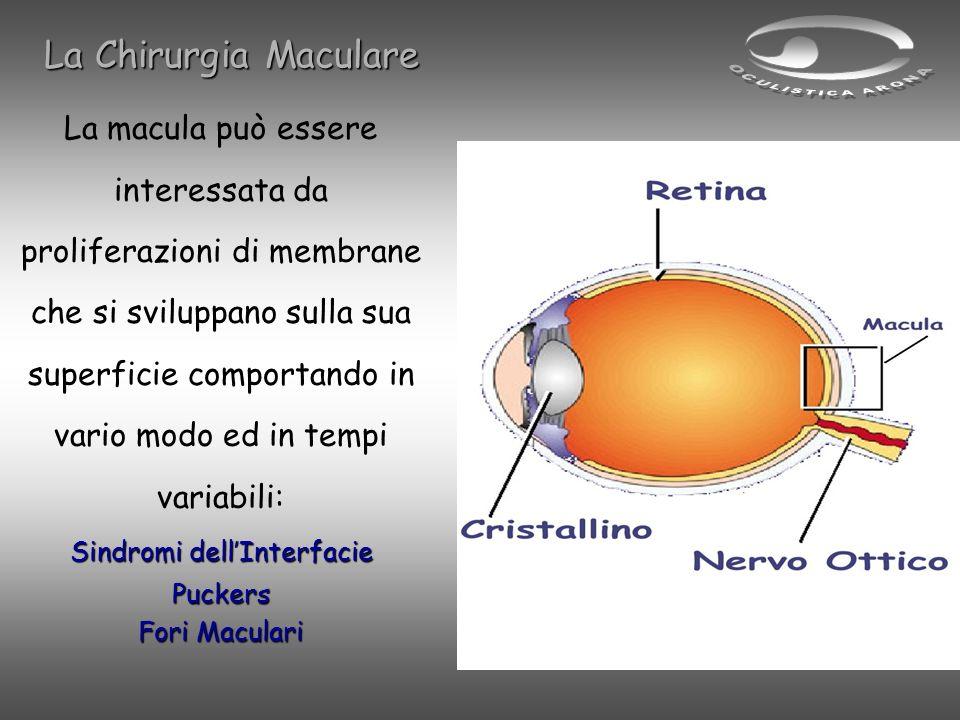 La macula può essere interessata da proliferazioni di membrane che si sviluppano sulla sua superficie comportando in vario modo ed in tempi variabili: