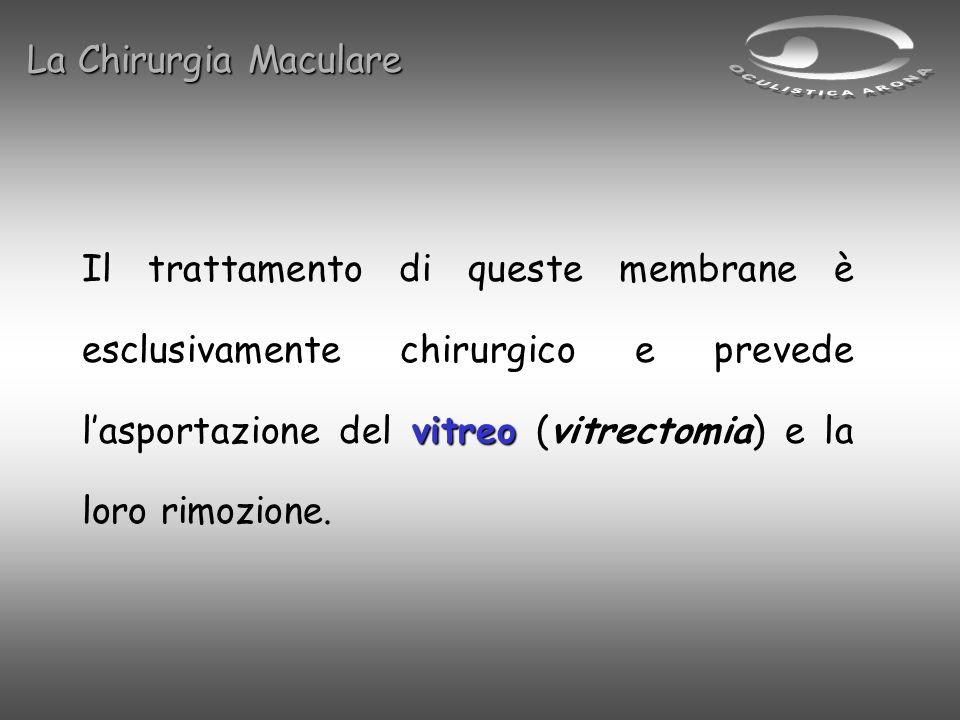 vitreo Il trattamento di queste membrane è esclusivamente chirurgico e prevede lasportazione del vitreo (vitrectomia) e la loro rimozione. La Chirurgi