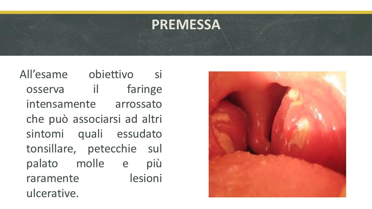 PREMESSA Allesame obiettivo si osserva il faringe intensamente arrossato che può associarsi ad altri sintomi quali essudato tonsillare, petecchie sul palato molle e più raramente lesioni ulcerative.