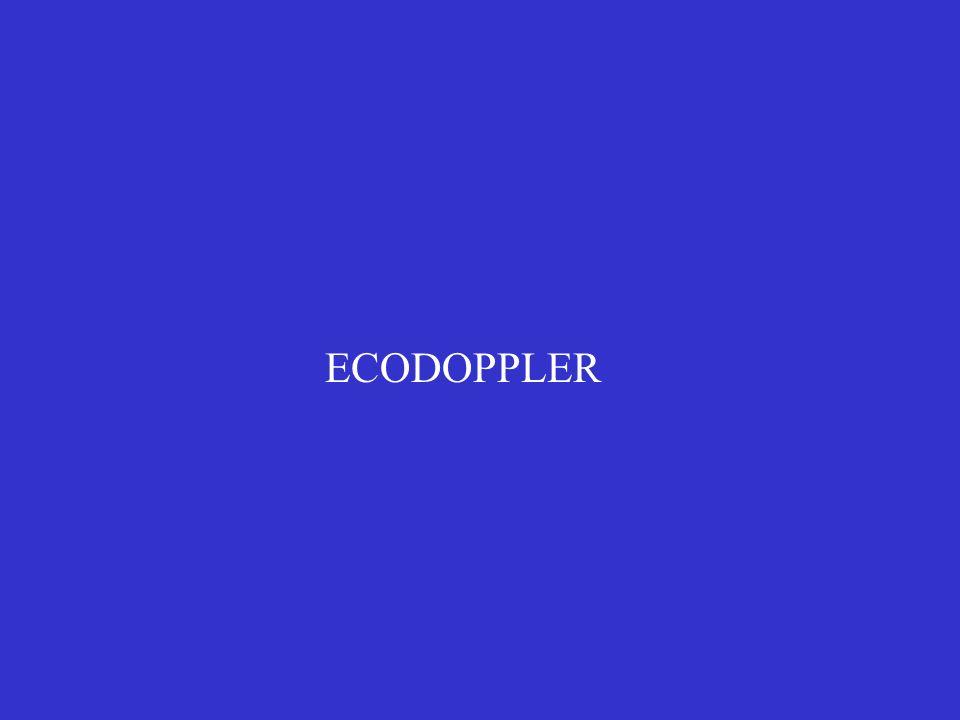 La successiva generazione di macchine si basa invece sulla tecnica del COLORDOPPLER: sull immagine ecografica viene riportato il dato di velocità acquisito da una sonda Doppler multigate e codificato in colore.