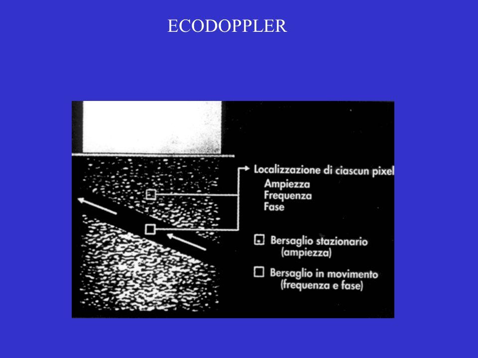 ECODOPPLER