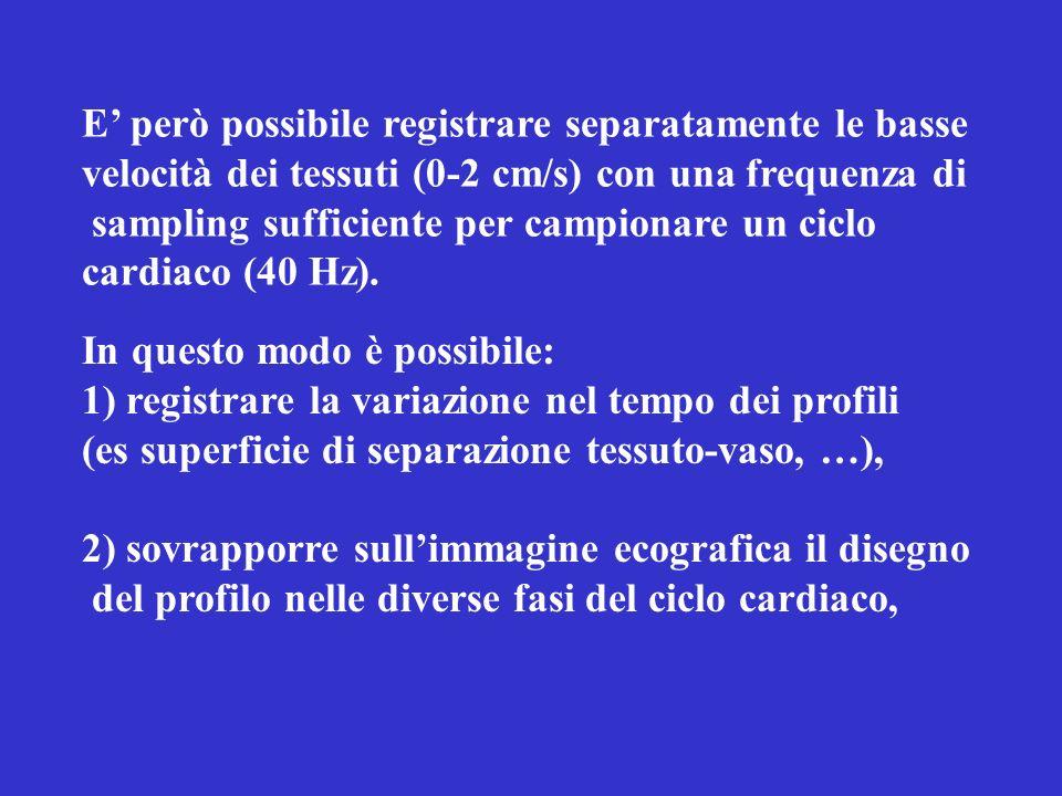 E però possibile registrare separatamente le basse velocità dei tessuti (0-2 cm/s) con una frequenza di sampling sufficiente per campionare un ciclo cardiaco (40 Hz).