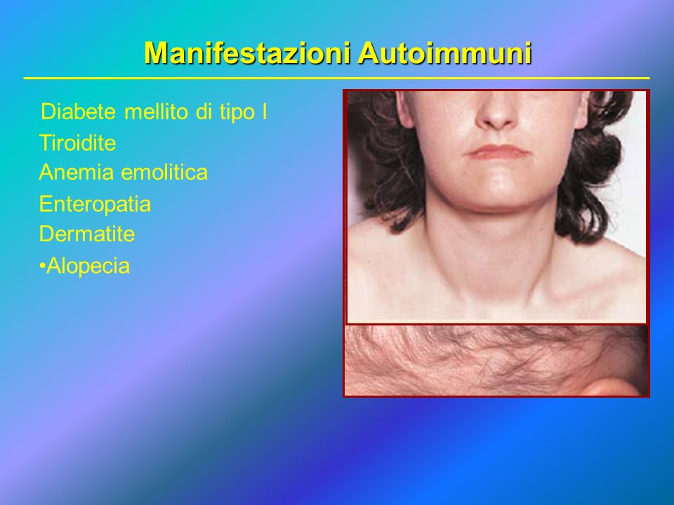 Manifestazioni Autoimmuni Diabete mellito di tipo I Tiroidite Anemia emolitica Enteropatia Dermatite Alopecia