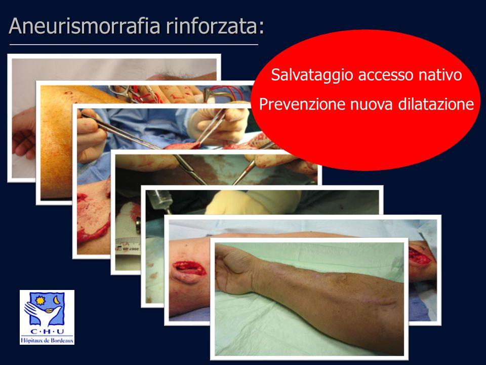 Aneurismorrafia rinforzata: PROTESI A MAGLIA IN DACRON Salvataggio accesso nativo Prevenzione nuova dilatazione