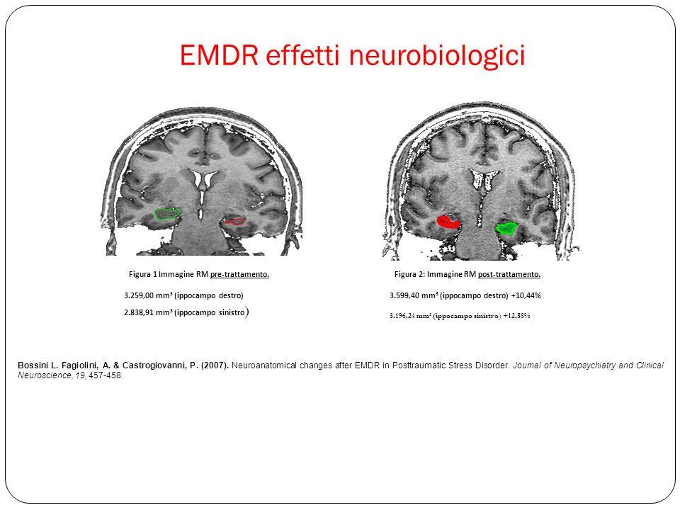 EMDR effetti neurobiologici Figura 1 Immagine RM pre-trattamento.Figura 2: Immagine RM post-trattamento.