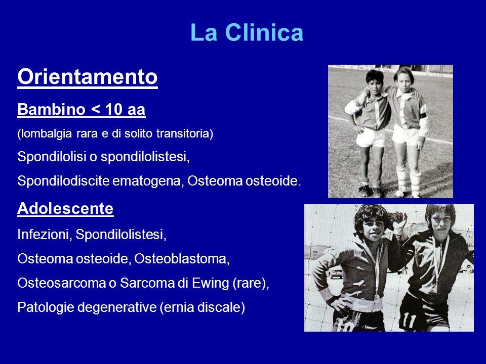 La Clinica Orientamento Bambino < 10 aa (lombalgia rara e di solito transitoria) Spondilolisi o spondilolistesi, Spondilodiscite ematogena, Osteoma os