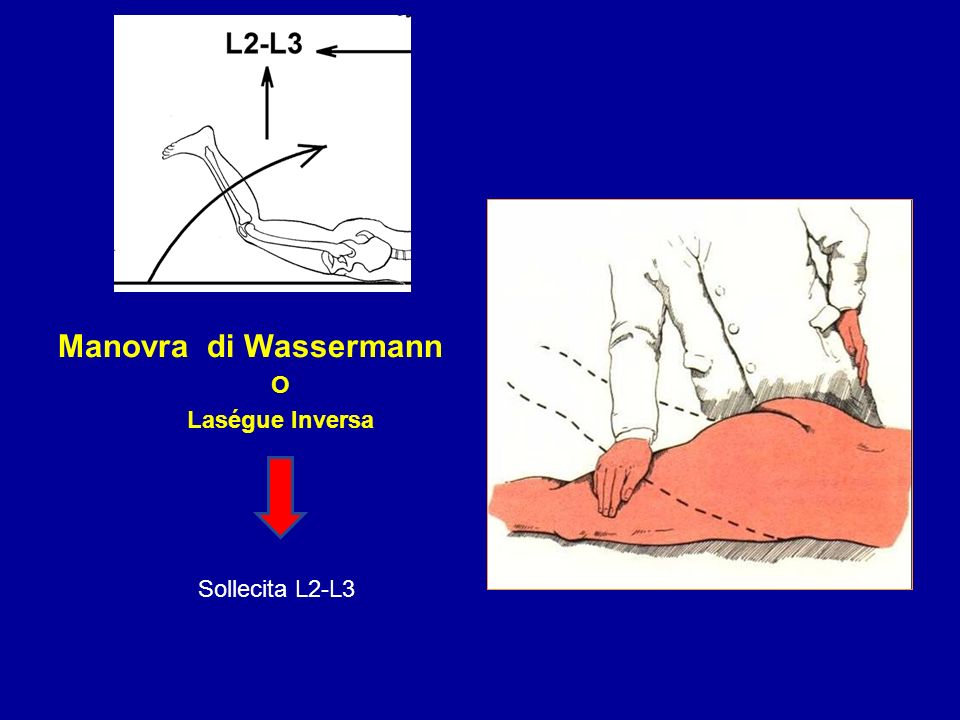 Manovra di Wassermann O Laségue Inversa Sollecita L2-L3