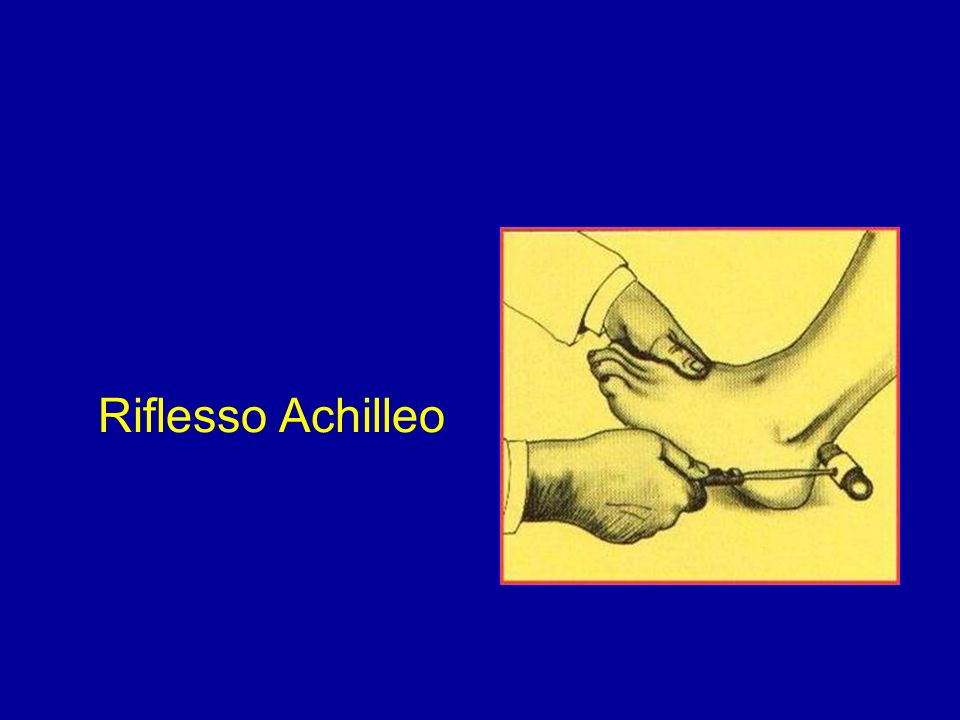 Riflesso Achilleo