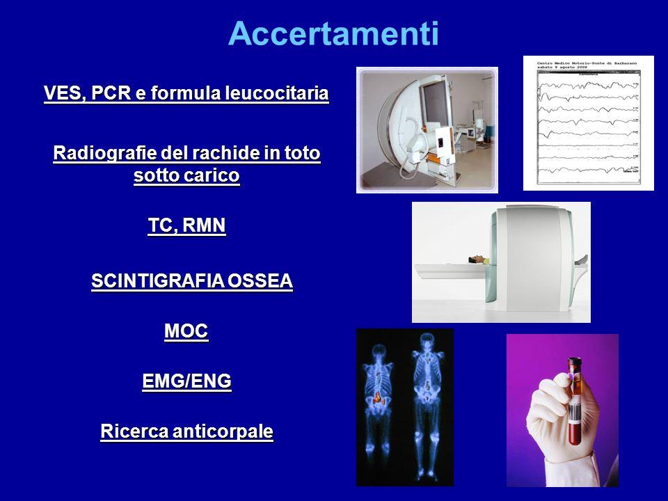 Accertamenti VES, PCR e formula leucocitaria Radiografie del rachide in toto sotto carico TC, RMN SCINTIGRAFIA OSSEA MOC EMG/ENG Ricerca anticorpale