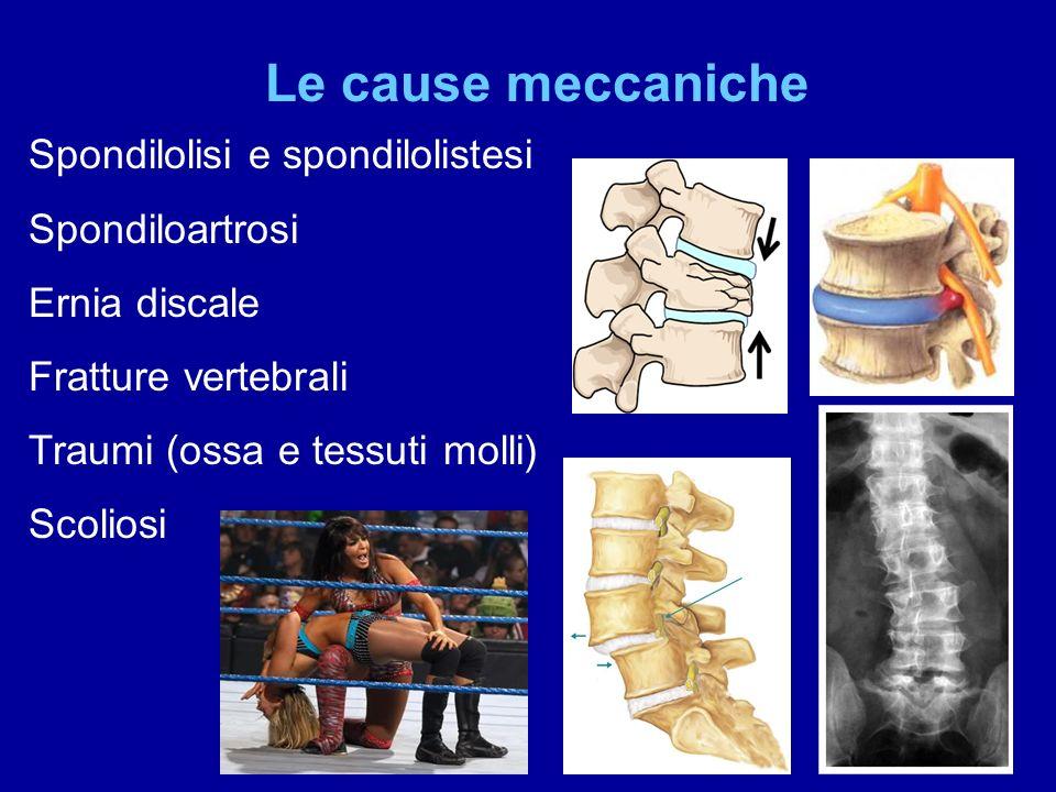 Le cause reumatologiche Spondiliti sieronegative Spondilite anchilosante Artrite psoriasica Sindrome di Reiter Artite reumatoide Polimialgia reumatica