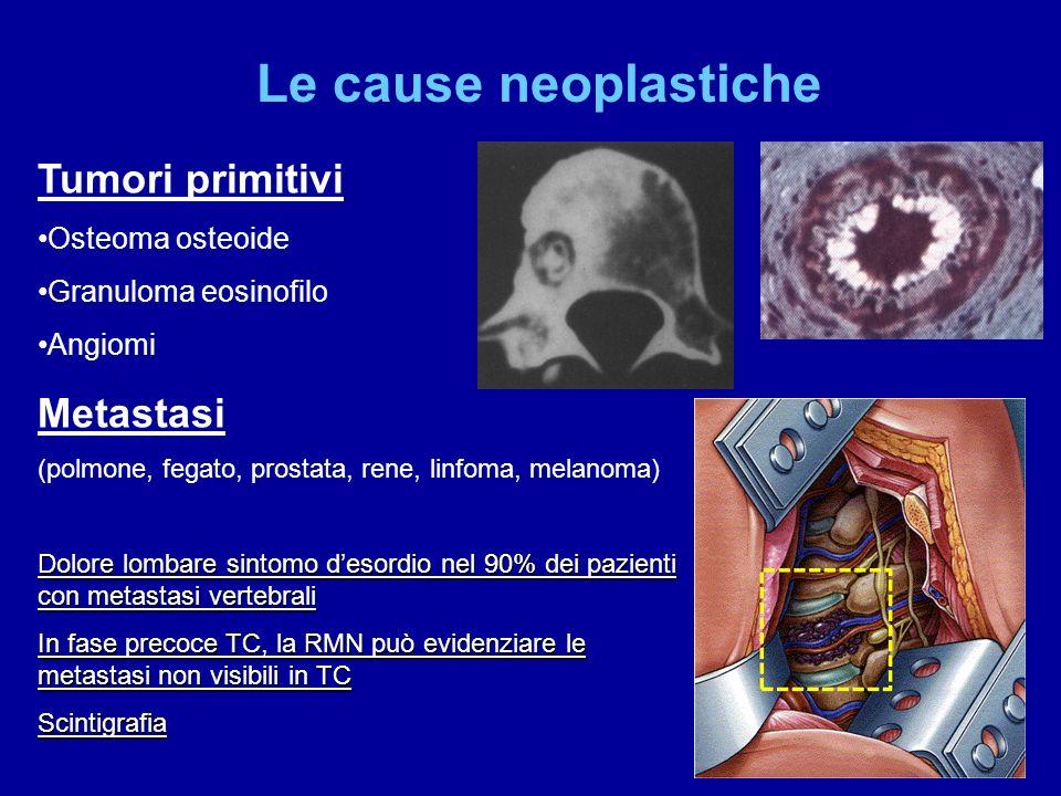Le cause neoplastiche Tumori primitivi Osteoma osteoide Granuloma eosinofilo Angiomi Metastasi (polmone, fegato, prostata, rene, linfoma, melanoma) Do