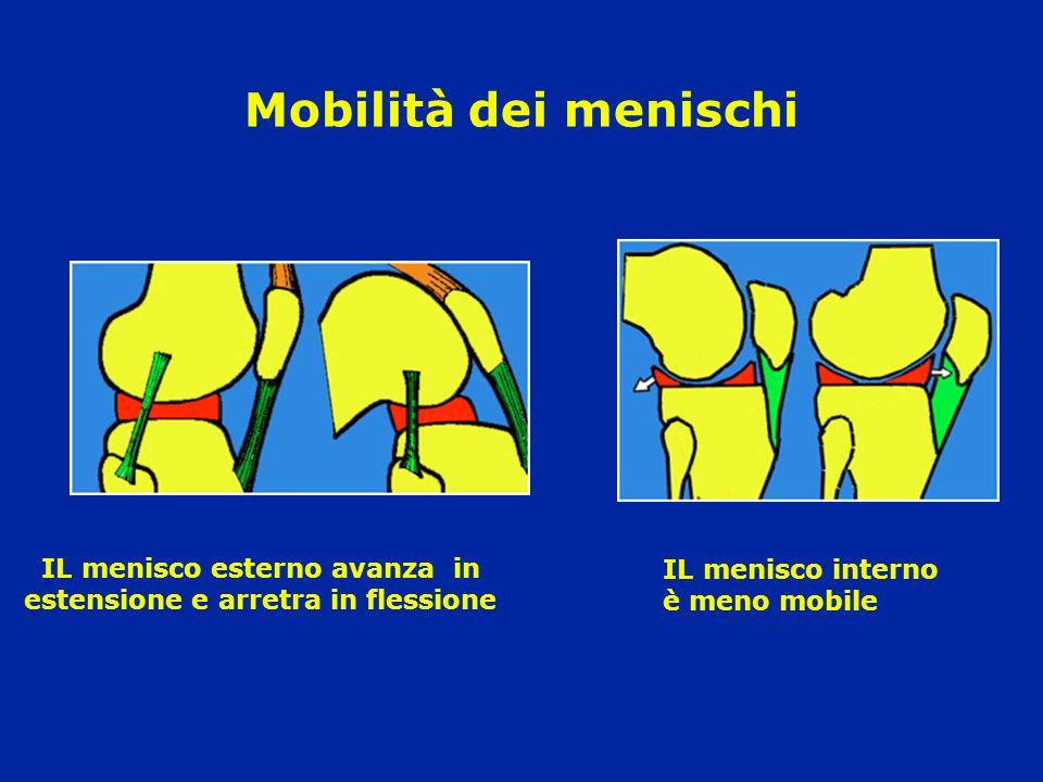 Mobilità dei menischi IL menisco esterno avanza in estensione e arretra in flessione IL menisco interno è meno mobile