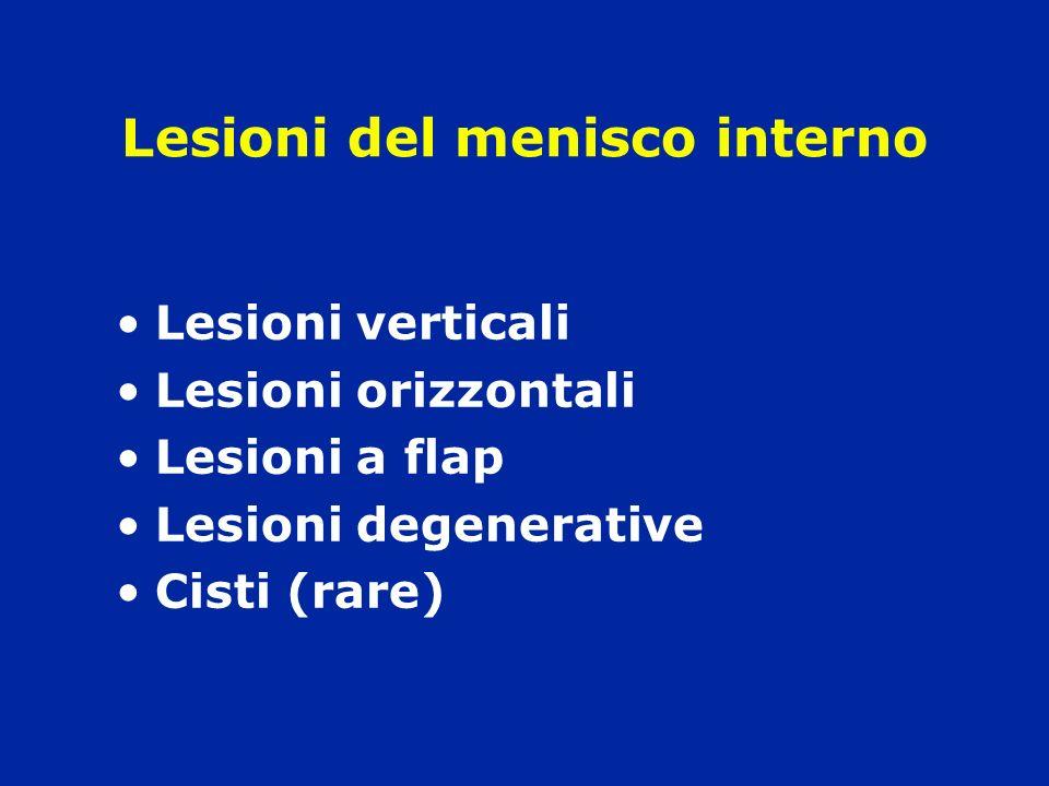 Lesioni del menisco interno Lesioni verticali Lesioni orizzontali Lesioni a flap Lesioni degenerative Cisti (rare)