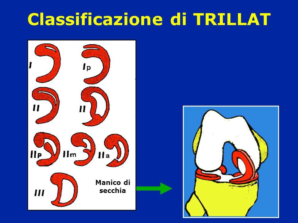 Classificazione di TRILLAT Manico di secchia