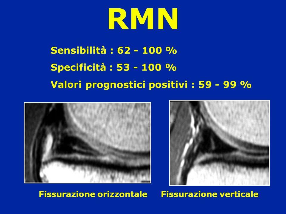 Sensibilità : 62 - 100 % Specificità : 53 - 100 % Valori prognostici positivi : 59 - 99 % Fissurazione orizzontale Fissurazione verticale