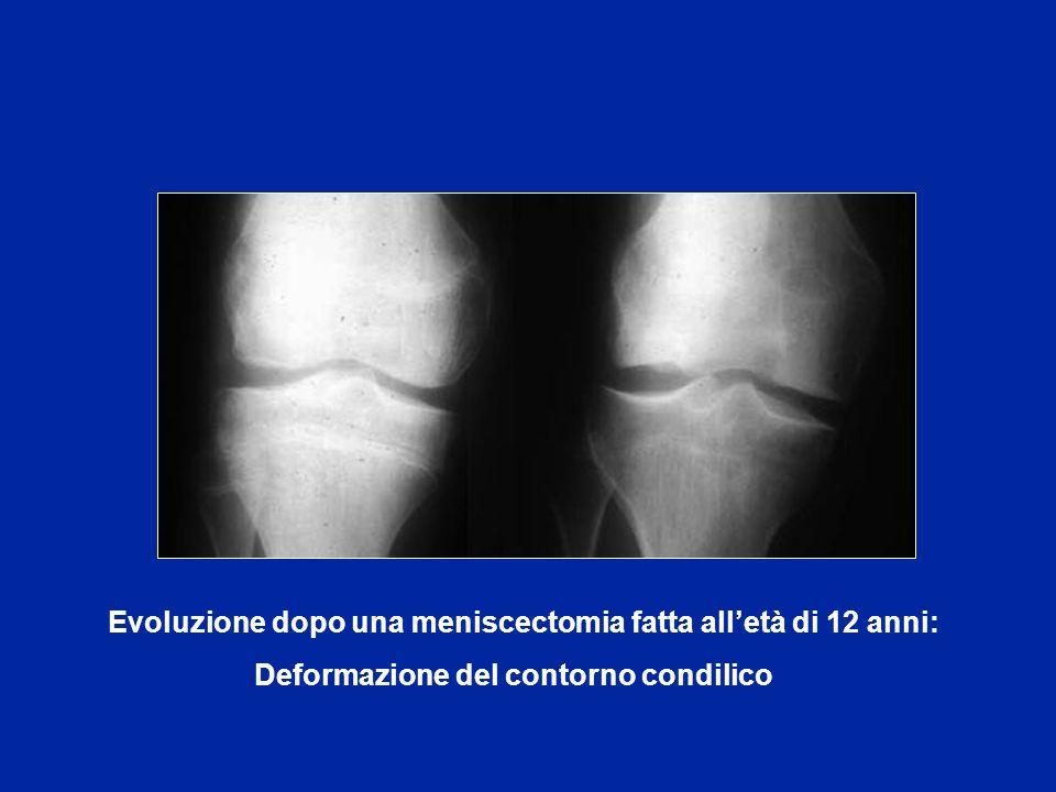 Evoluzione dopo una meniscectomia fatta alletà di 12 anni: Deformazione del contorno condilico