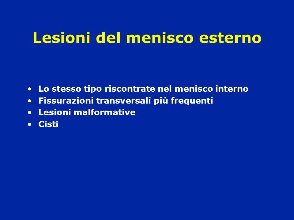 Lesioni del menisco esterno Lo stesso tipo riscontrate nel menisco interno Fissurazioni transversali più frequenti Lesioni malformative Cisti