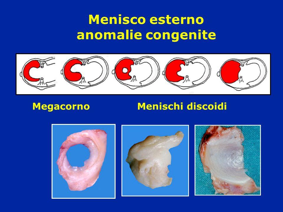 Menisco esterno anomalie congenite MegacornoMenischi discoidi