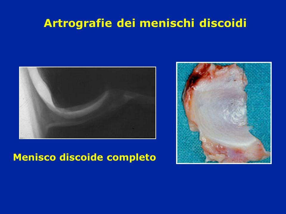Artrografie dei menischi discoidi Menisco discoide completo